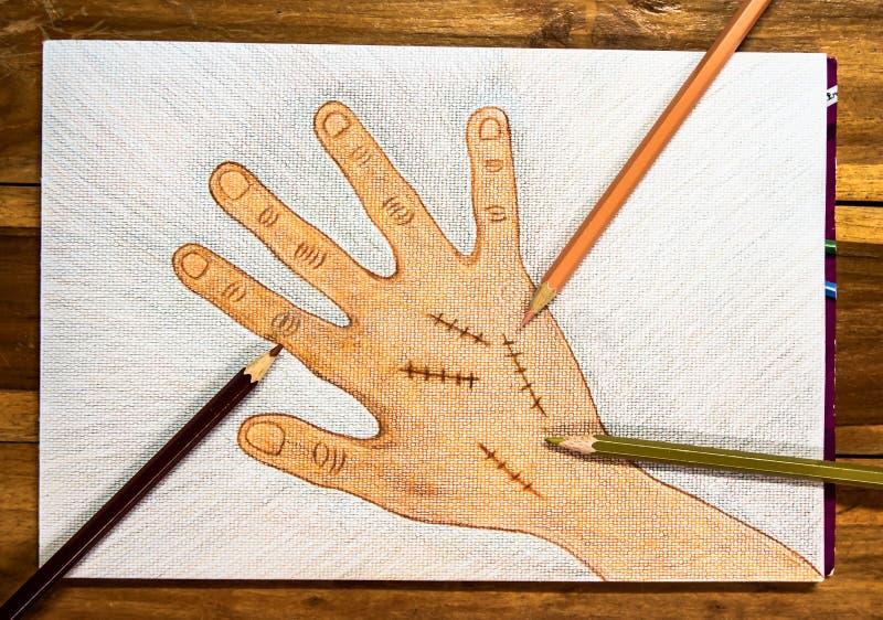 Dé la mano derecha exhausta con la sutura quirúrgica de la herida por los lápices de madera del color en el fondo en la tabla, co fotografía de archivo