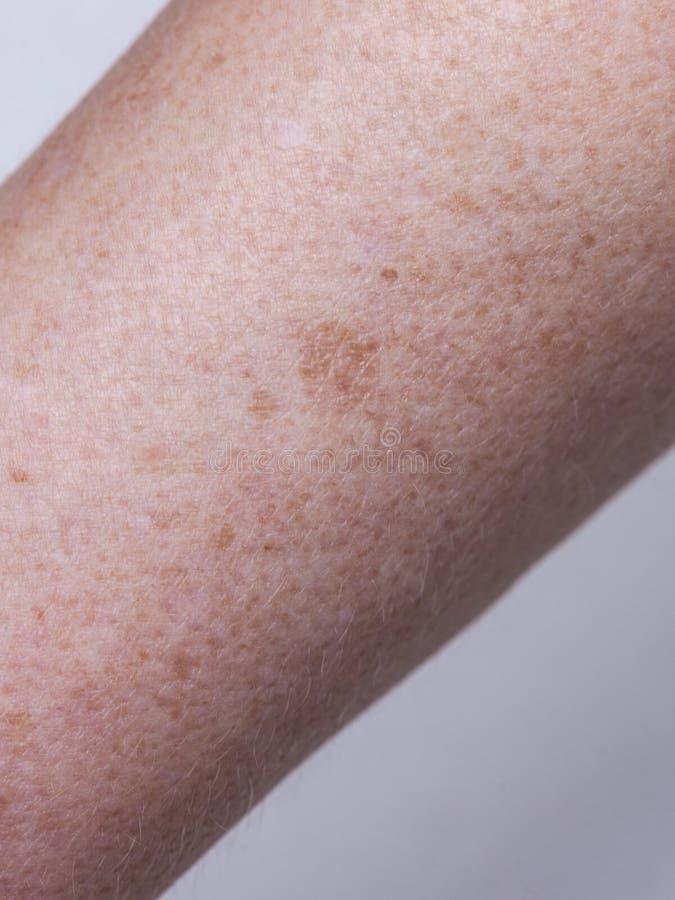 Décoloration de teint de peau, haut étroit de hyperpigmentation photos libres de droits
