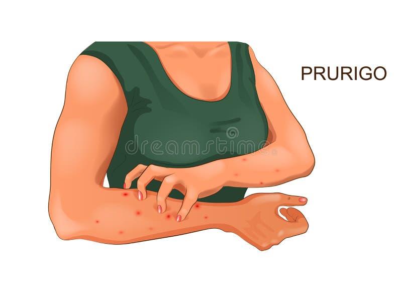Démanger allergique de la peau illustration de vecteur