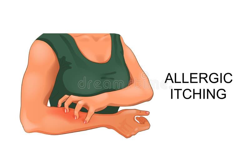 Démanger allergique de peau illustration de vecteur