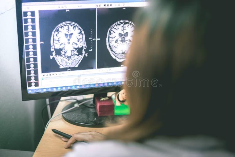 Démence sur le film d'IRM démence de cerveau photo stock