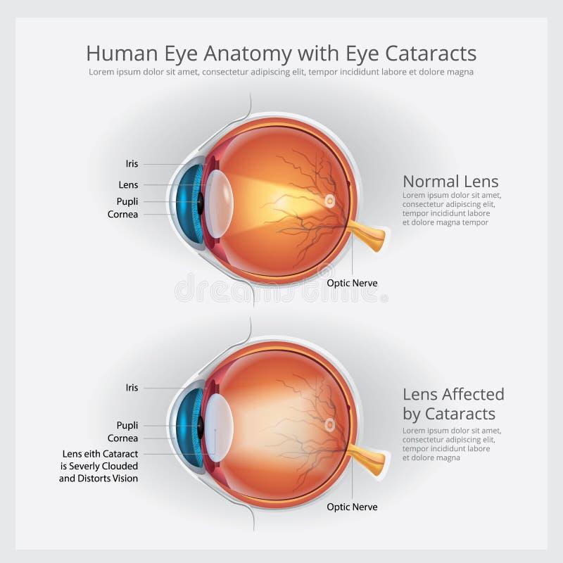 Désordre de vision de cataractes et anatomie normale de vision d'oeil illustration stock