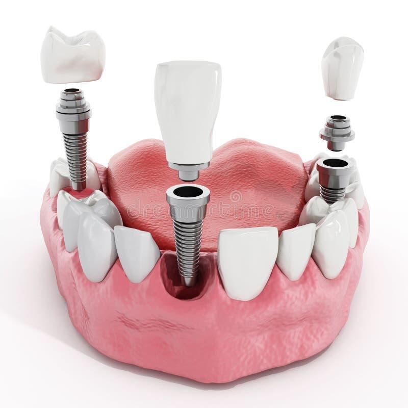 Détail d'implant dentaire illustration libre de droits