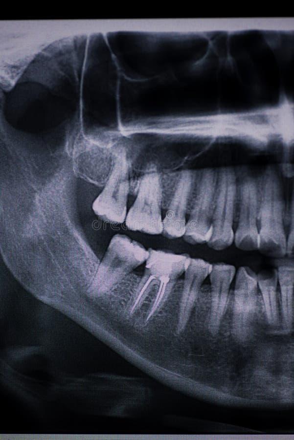 Détail de X Ray dentaire avec un canal radiculaire image libre de droits