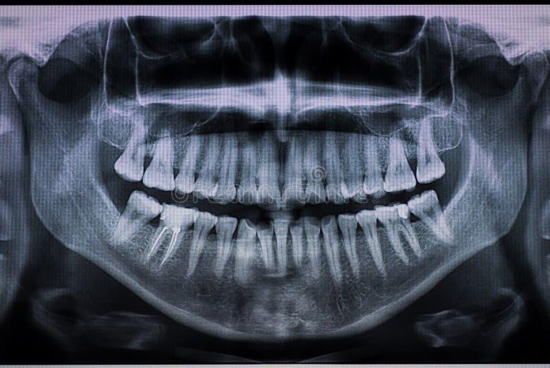 Détail de X Ray dentaire avec un canal radiculaire photos stock