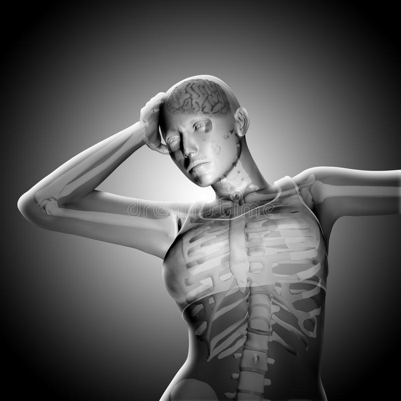 3D回报一个医疗妇女形象对负顶头在痛苦中 向量例证