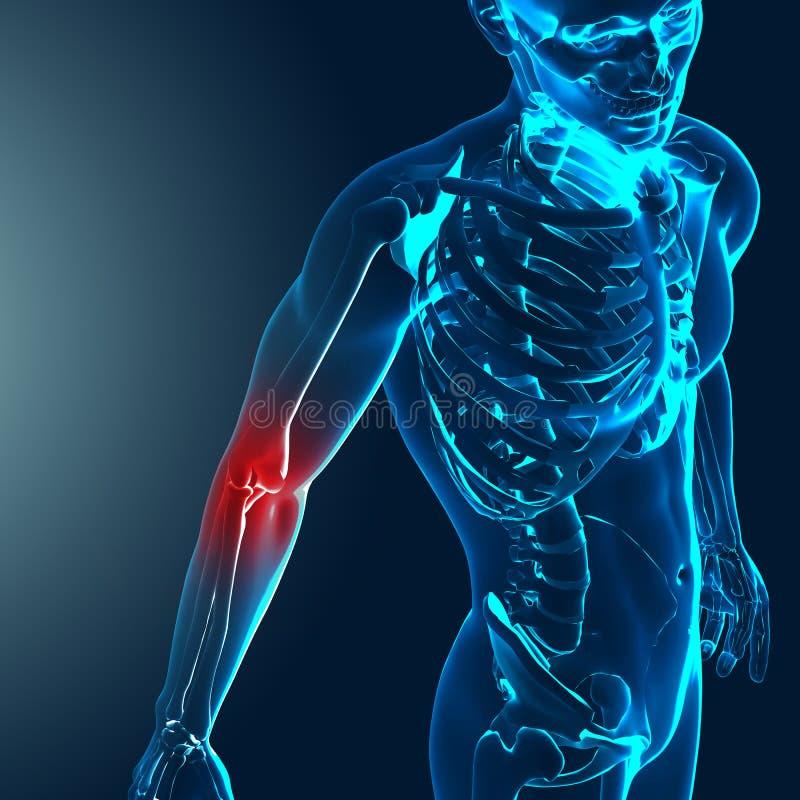 3d回报与痛苦的手肘的一个医疗图象被突出 向量例证