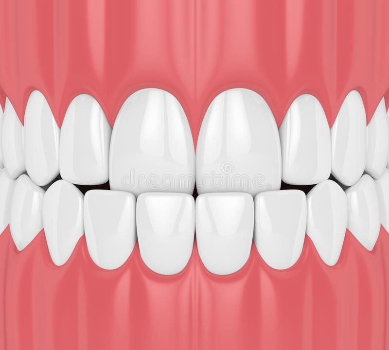 3d回报与underbite的下颌咬合不良 向量例证