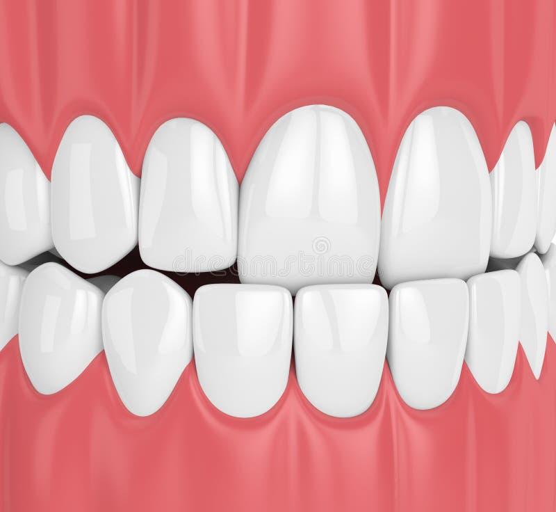 3d回报与underbite的下颌咬合不良 库存例证