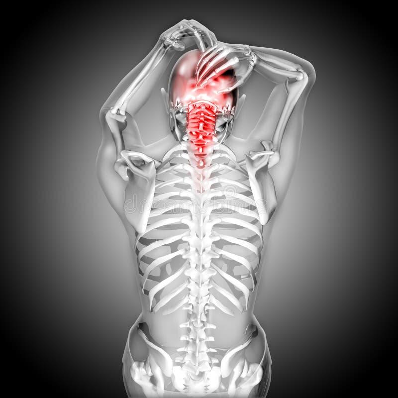 3D回报充满头和脖子痛的一个妇女形象 库存例证