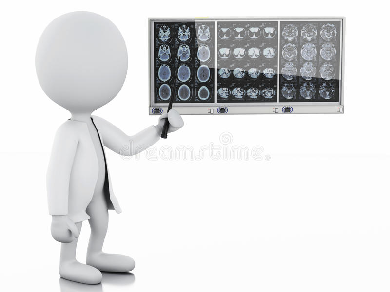 3d有头盖骨脑子影片的白人医生 库存例证