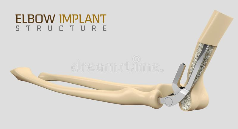 3d肘关节的endoprosthesis的例证 库存例证