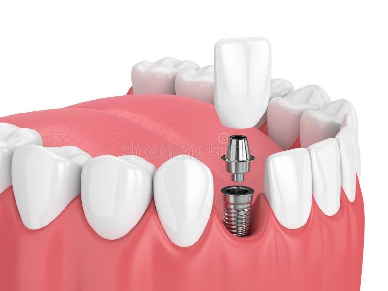 3d übertragen vom Kiefer mit den Zähnen und zahnmedizinischem Schneideimplantat stock abbildung