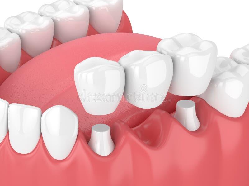 3d übertragen vom Kiefer mit Zahnbrücke lizenzfreie abbildung