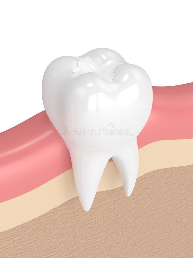 3d übertragen vom Zahn mit zahnmedizinischer zusammengesetzter Füllung lizenzfreie abbildung
