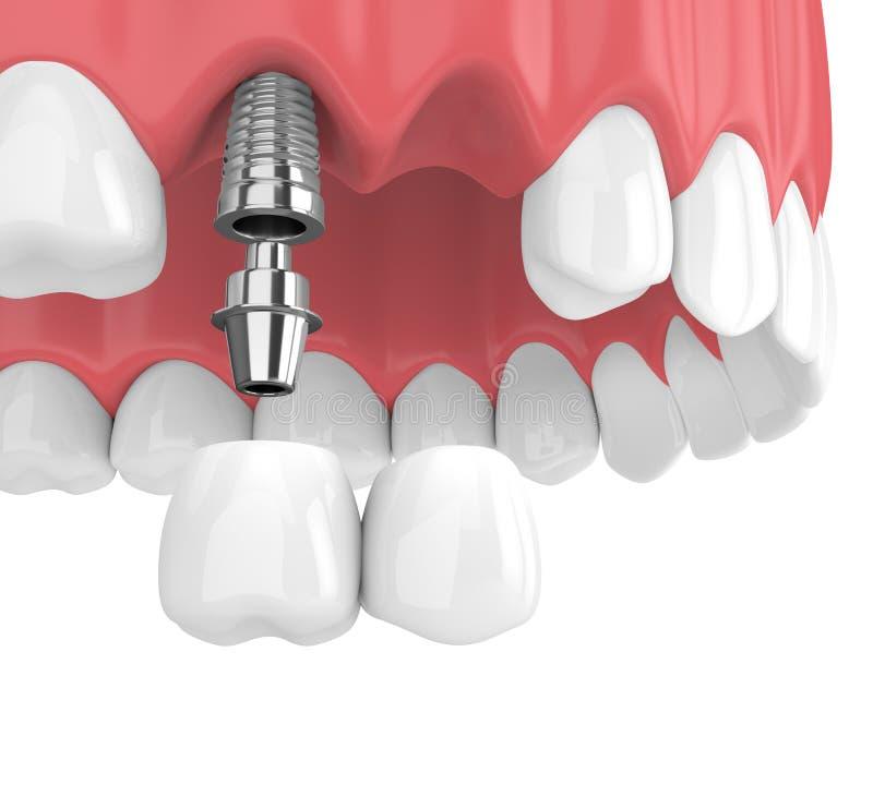 3d übertragen von den Implantaten mit zahnmedizinischer Auslegerbrücke im oberen Kiefer vektor abbildung