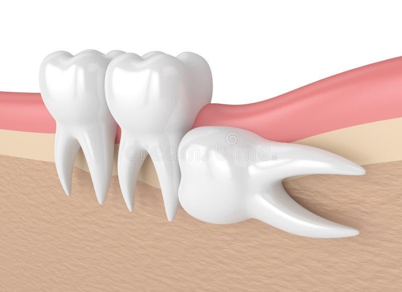 3d übertragen von den Zähnen mit Klugheit horizontalem Impaction lizenzfreie abbildung