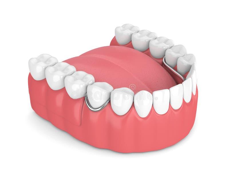 3d представляют съемного частично denture иллюстрация штока