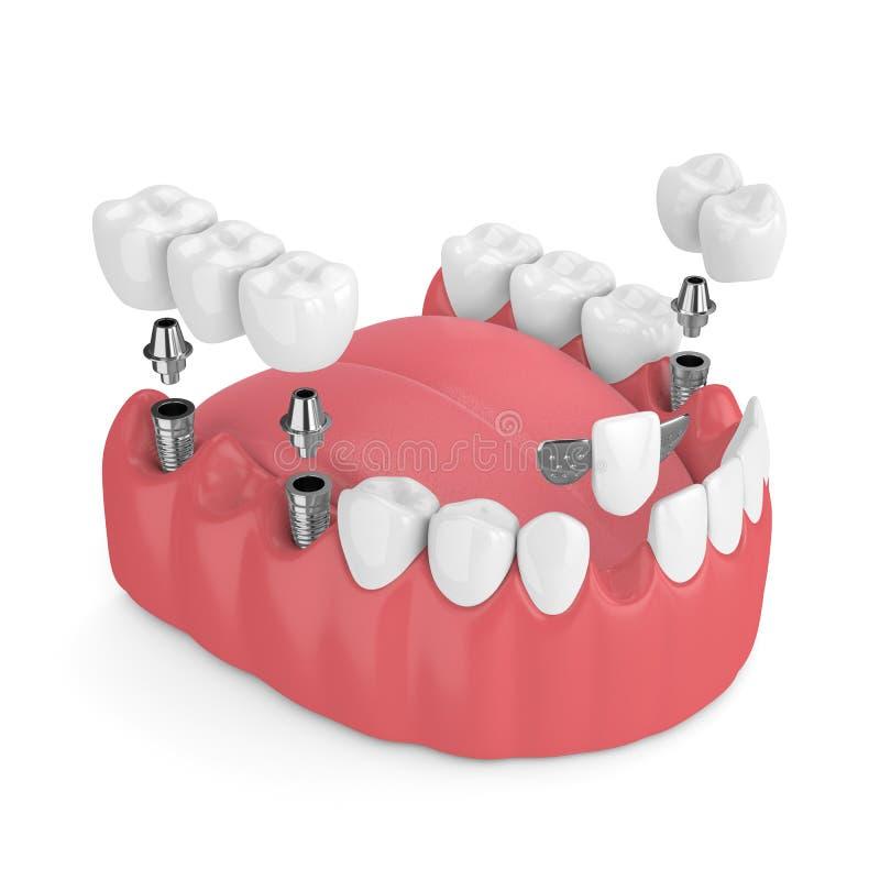 3d представляют челюсти с зубными имплантатами и мостами иллюстрация вектора