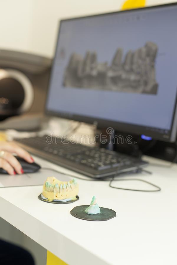 3d сканирование зубного протезного зуба стоковые фотографии rf