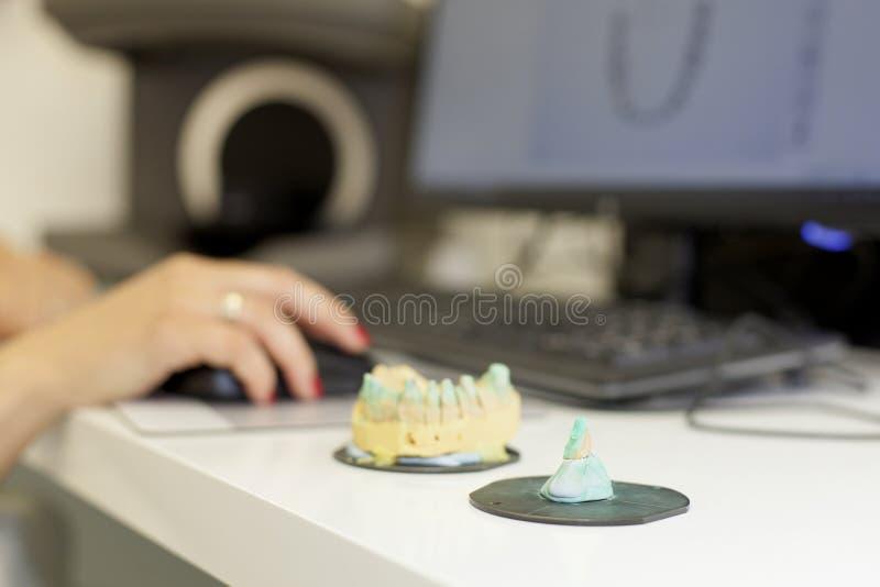3d сканирование зубного протезного зуба стоковые изображения