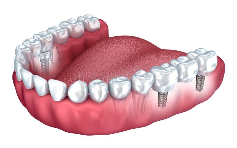 3d abaissent les dents et l'implant dentaire d'isolement illustration de vecteur