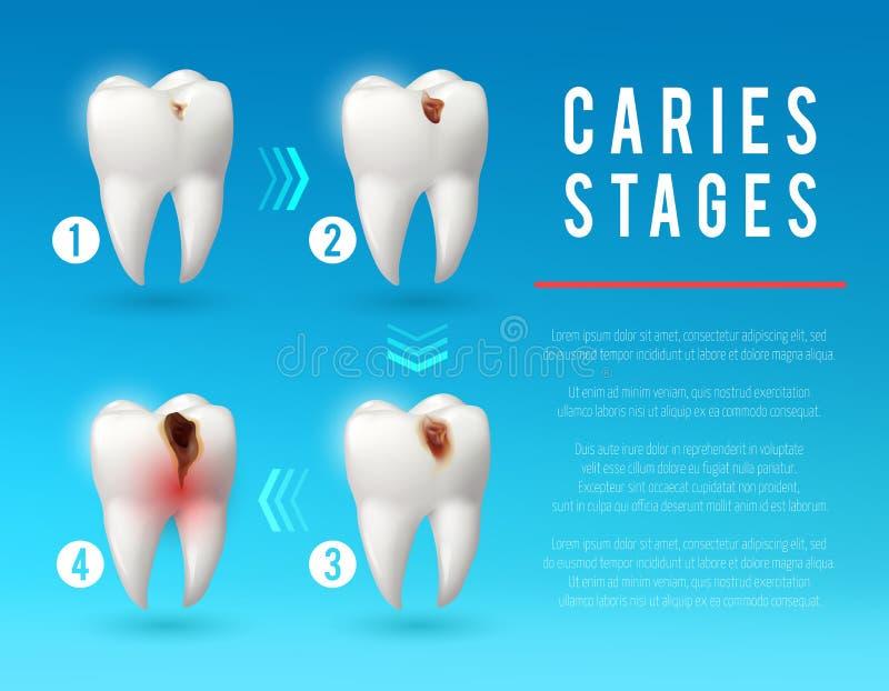 3d affiche van het tandbederf van tandbederfontwikkeling royalty-vrije illustratie