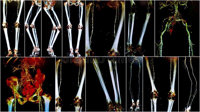 3D angio X线体层照相术股动脉拼贴画 库存图片