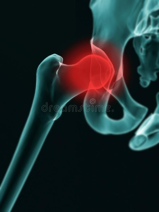 X-Ray effect image of hip section of Human with red highlighting the joint area royalty free stock image