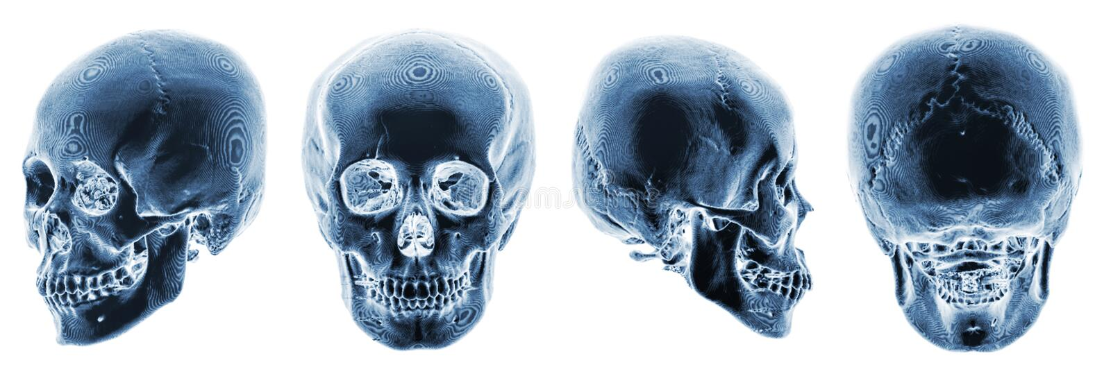 3D CT scan of human skull . Multiple view . Invert color style.  royalty free stock photo