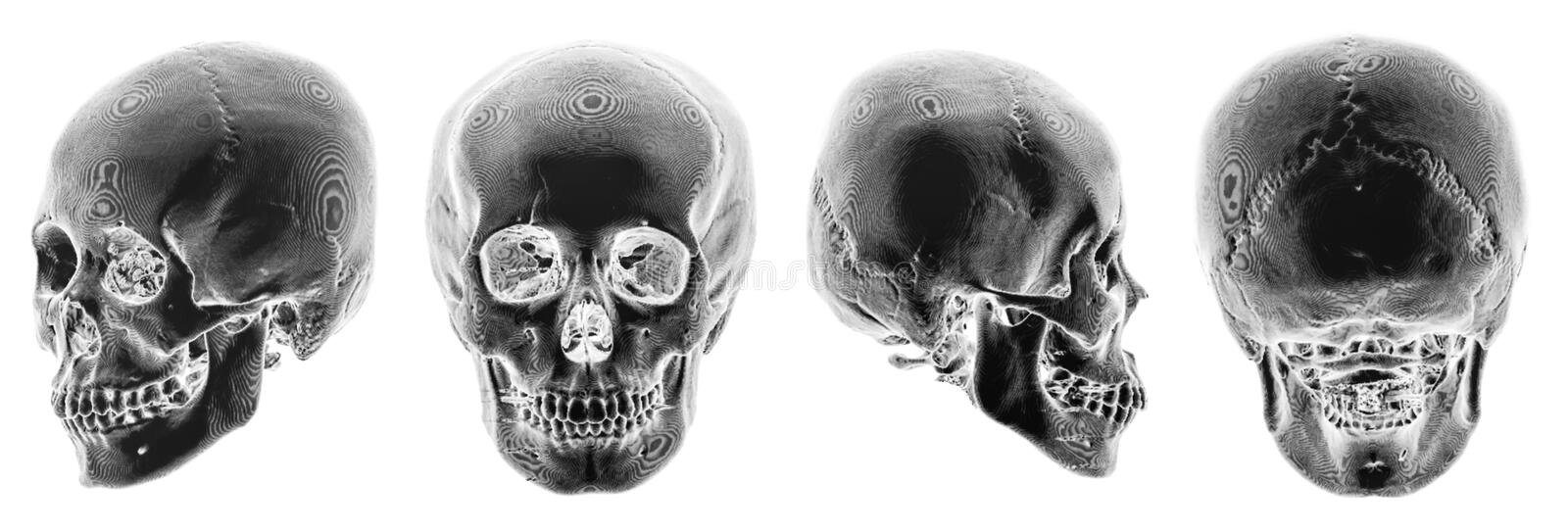 3D CT scan of human skull . Multiple view . Invert color style . stock image