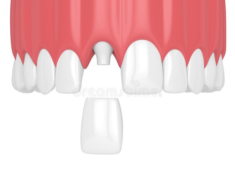 3d framför av övrekäken med tänder och den tand- framtandkronan royaltyfri illustrationer