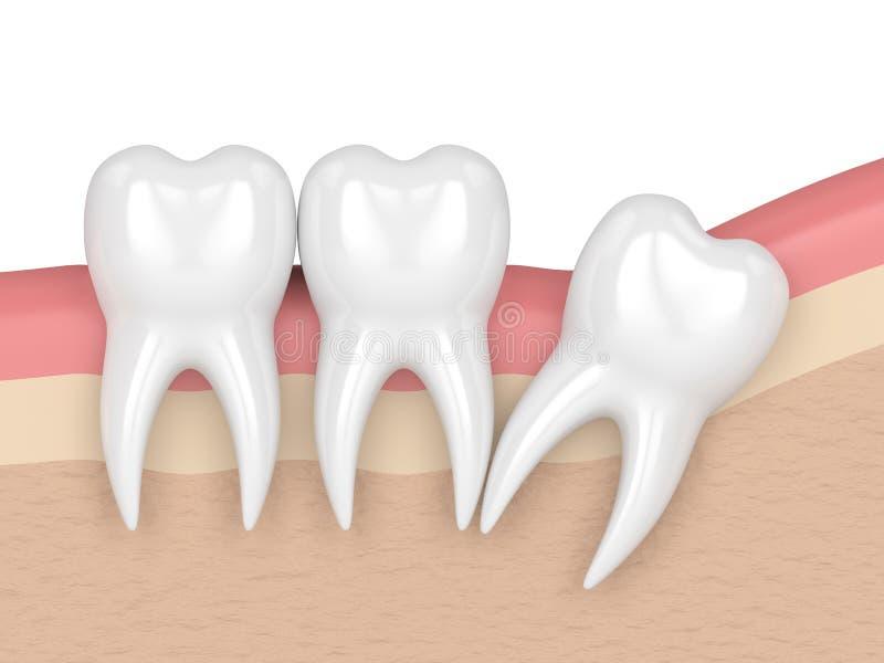 3d framför av tänder med distal impaction för vishet royaltyfri illustrationer