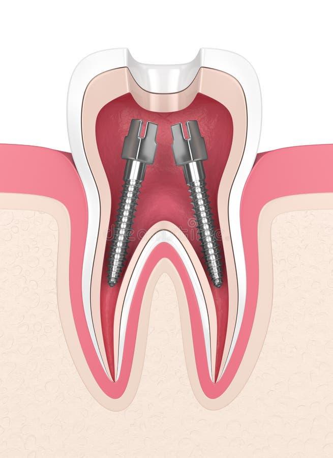 3d framför av tanden med tand- rotar kanalstolpar stock illustrationer