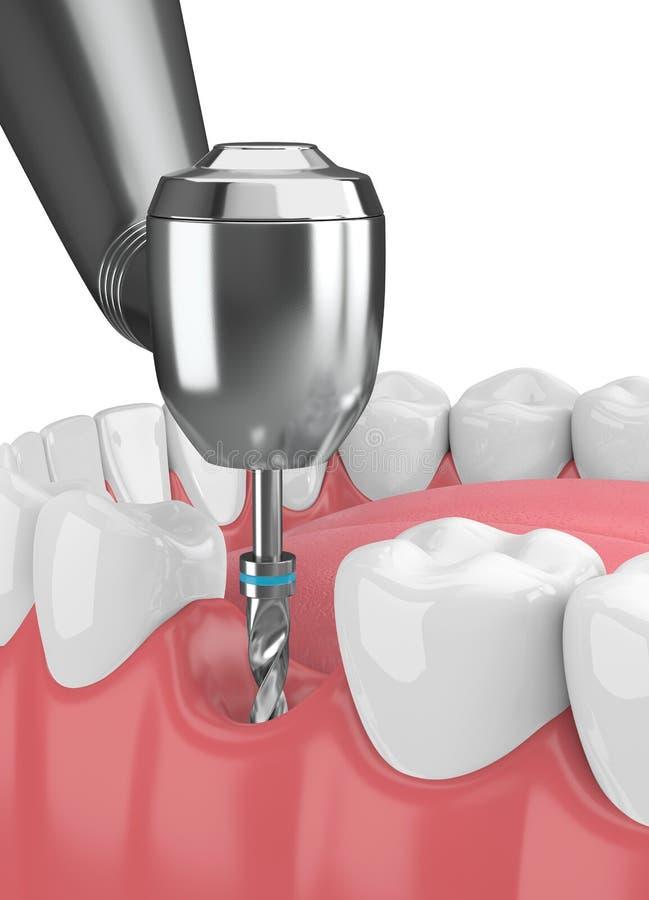 3d geef van kaak met tandimplant boor terug vector illustratie