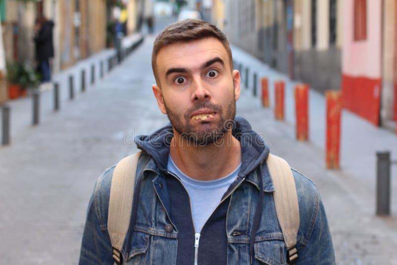 D'homme étrange avec les dents vraiment mauvaises photo stock