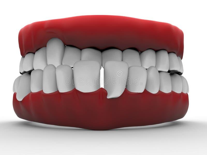 3D illustratie - slechte tanden stock illustratie