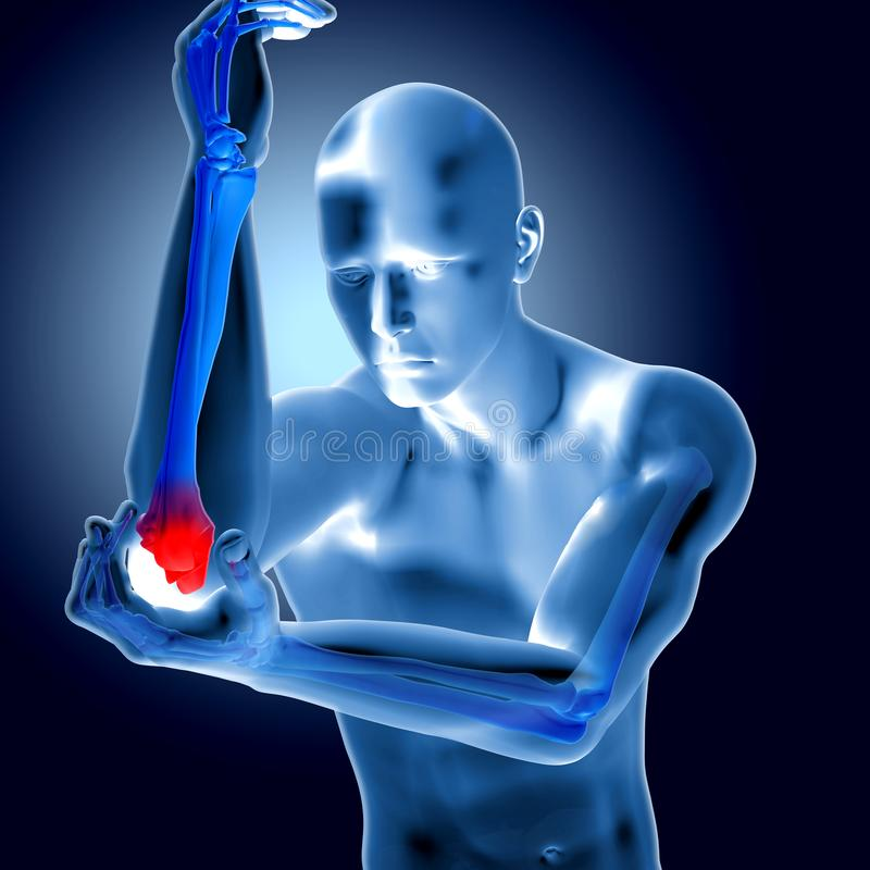 3d illustratie van een medisch cijfer met pijnlijke elleboog royalty-vrije illustratie