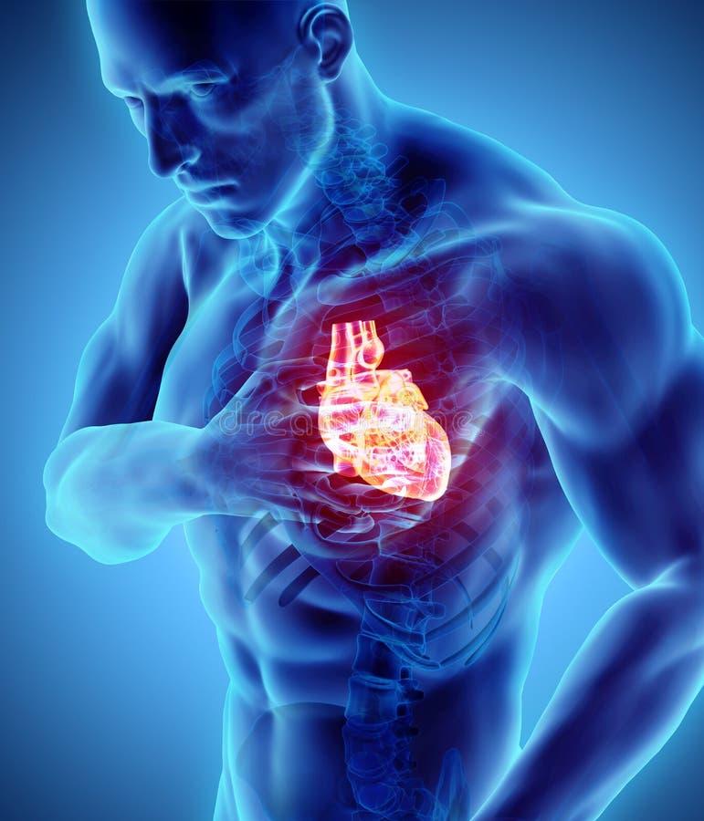 3d illustratie van menselijke hartaanval stock illustratie
