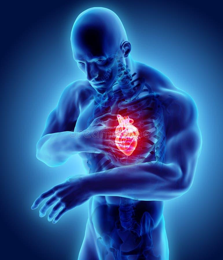 3d illustratie van menselijke hartaanval royalty-vrije illustratie