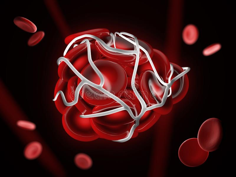 3d Illustration of illustration of a blood clot, thrombus or embolus with coagulated red blood cells. 3d Illustration of illustration of a blood clot, thrombus vector illustration