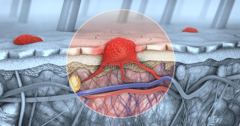 Cross section of a diseased skin with melanoma that enters the bloodstream and lymphatic tract. 3d illustration of a cross-section of a diseased skin with stock illustration