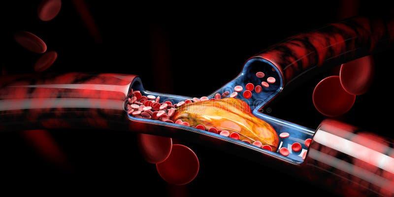 3d Illustration of Deep Vein Thrombosis or Blood Clots, Embolism. 3d Illustration of Deep Vein Thrombosis or Blood Clots, Embolism royalty free illustration