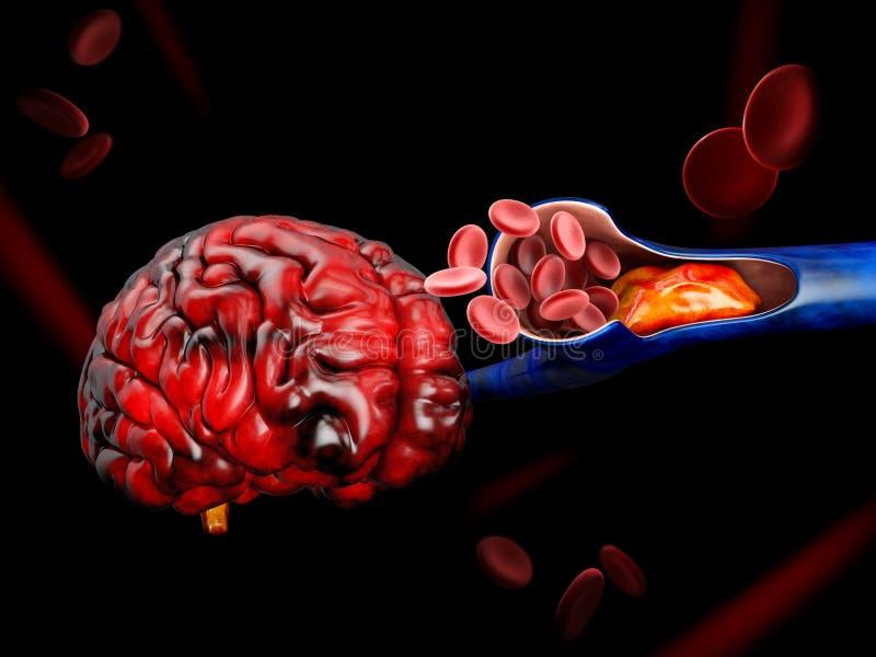 3d Illustration of Deep Vein Thrombosis or Blood Clots. Embolism.  royalty free illustration
