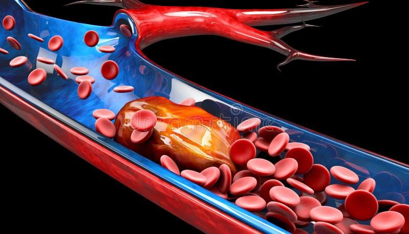 3d Illustration of Deep Vein Thrombosis or Blood Clots. Embolism royalty free illustration