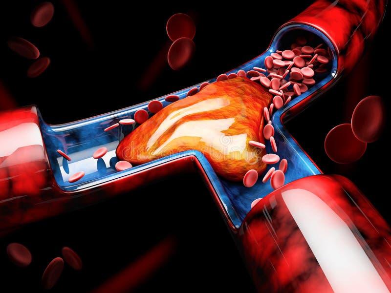 3d Illustration of Deep Vein Thrombosis or Blood Clots. Embolism.  vector illustration