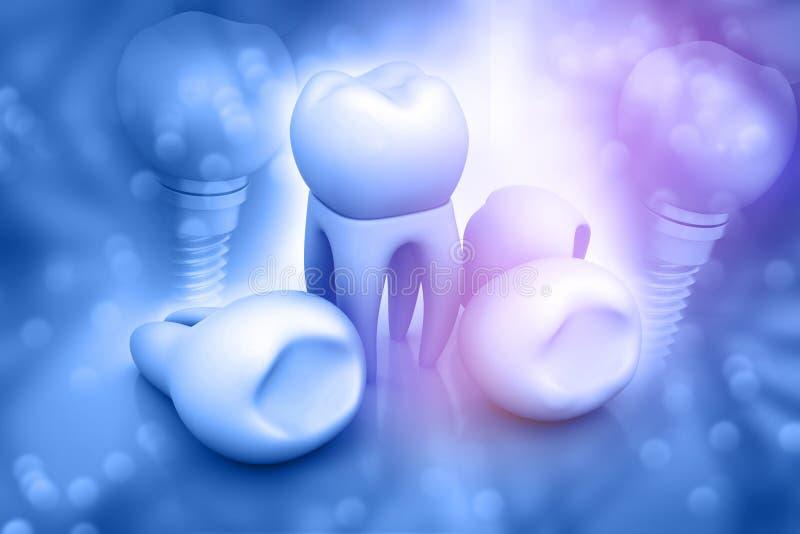Dental implant. 3d illustration of Dental implant stock illustration