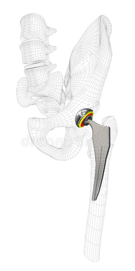 3d Illustration of Hip joint replacement, isolated gray.  royalty free illustration