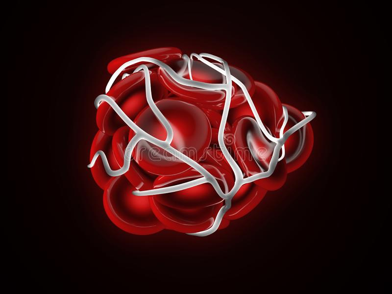 3d Illustration of illustration of a blood clot, thrombus or embolus with coagulated red blood cells. 3d Illustration of illustration of a blood clot, thrombus royalty free illustration