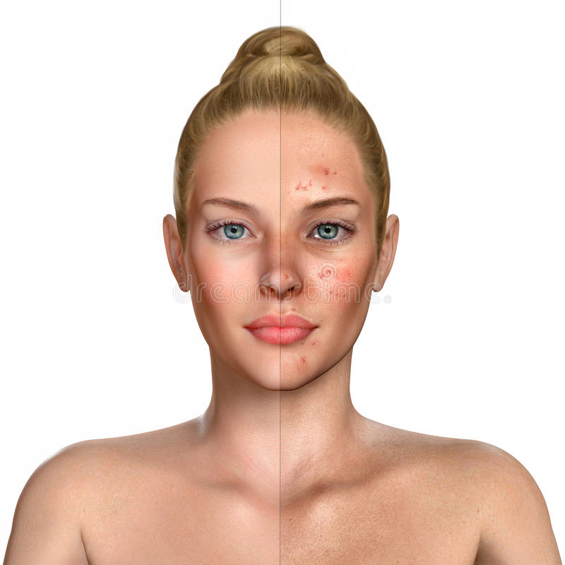 3d illustration of a woman before and after acne treatment procedure stock illustration